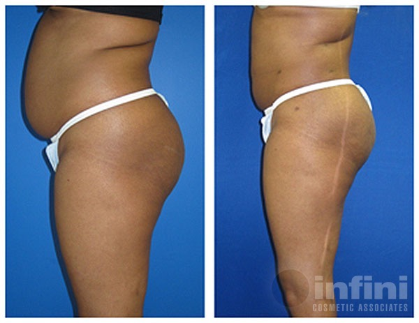 Gallery | Before and Afters Photos | Infini Cosmetic Associates