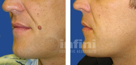 Eliminación de Lunares/ Verrugas/ Lesiones/ Quistes/Manchas