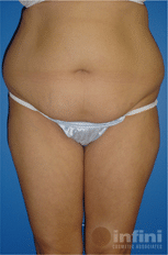 liposuction-final-1