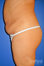 liposuction-final-3