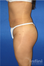 liposuction-final-4