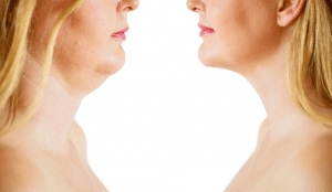 Neck and Chin Liposuction