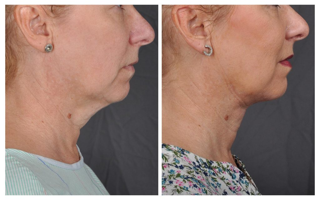 Skin Tightening with J-Plasma/J-plazty by Renuvion