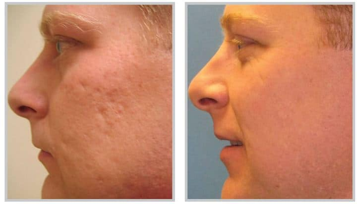 Profractional laser before & after
