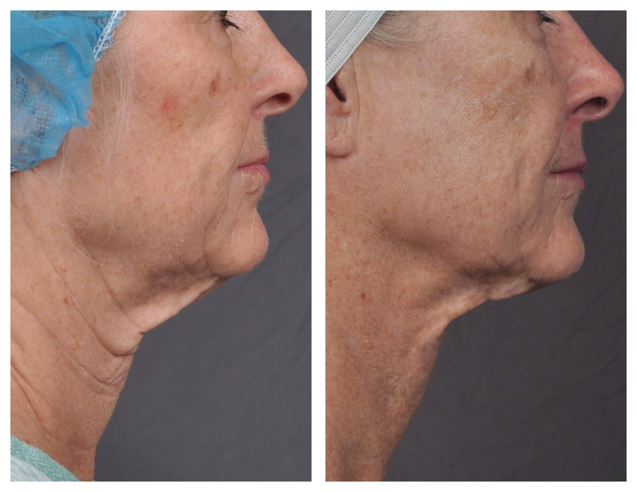 Skin Tightening with J-Plasma/J-plazty by Renuvion